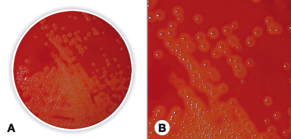 Blood Agar (Base)